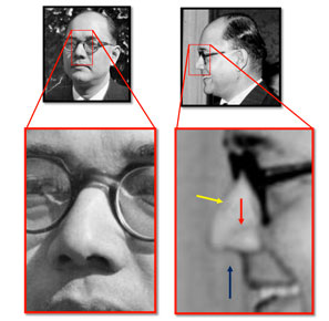 A secondary side profile image that Millar reviewed specifically to identify the nasal features
