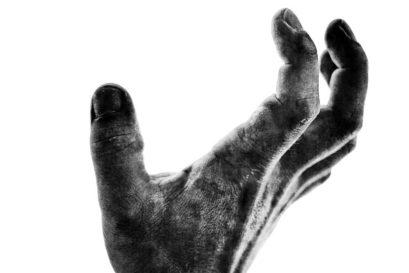 Leprosy: The Failed Eradication